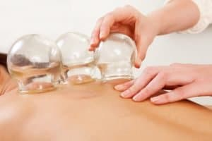 flame cupping therapy